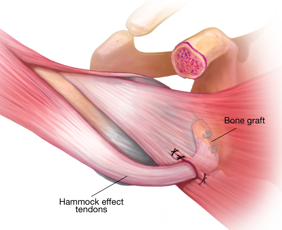 Shoulder Elbow Helping Maintain Healthy Shoulder And